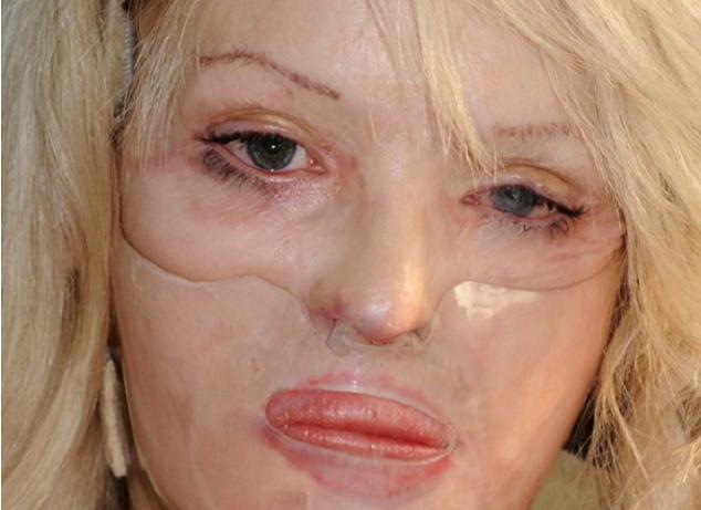Пред 9 години момчето и истури солна киселина на лицето  а таа денес изгледа вака
